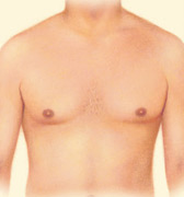Liposuction, Outline