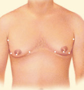 Liposuction, Incision