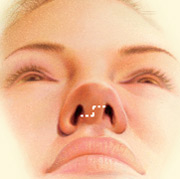 Nose Surgery, Outline