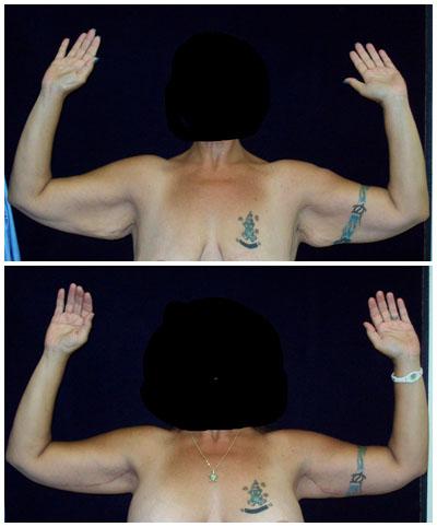 body2_armf