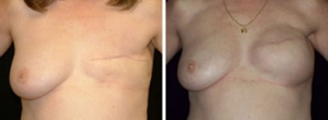 breast-reconstruction-03