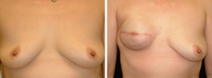 breast-reconstruction-04