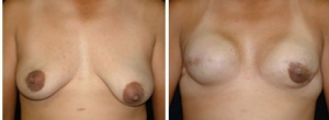 breast-reconstruction-05
