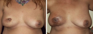 breast-reconstruction-06